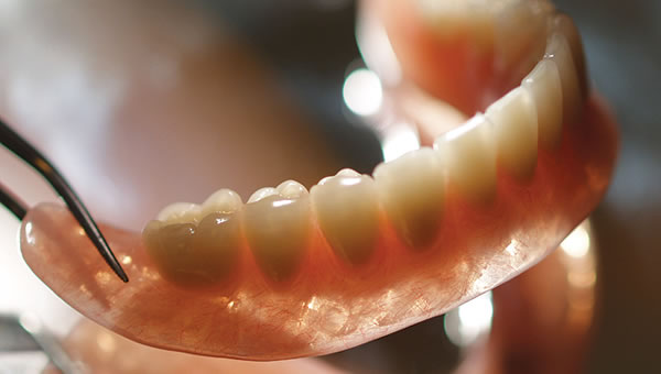 implant over denture