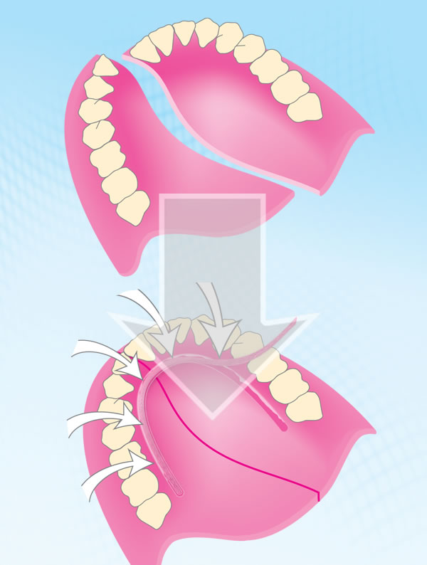 denture repair with fiber